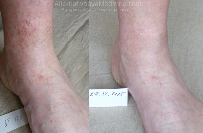 лечение васкулита (ангиита) Тиагой